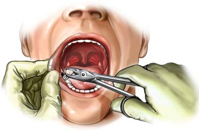 What You Should Expect During Tooth Extraction