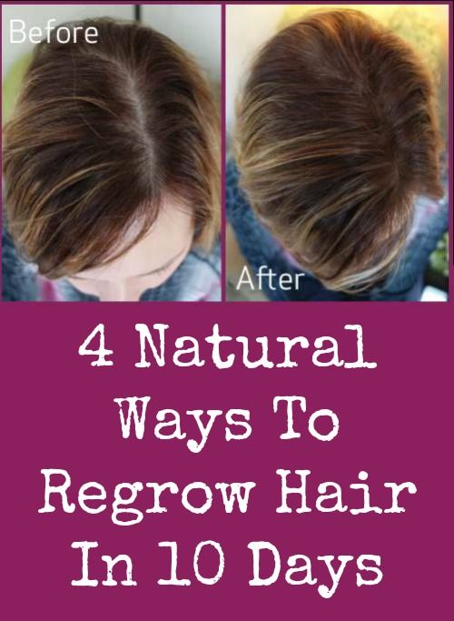 4 Natural Ways To Regrow Hair In 10 Days