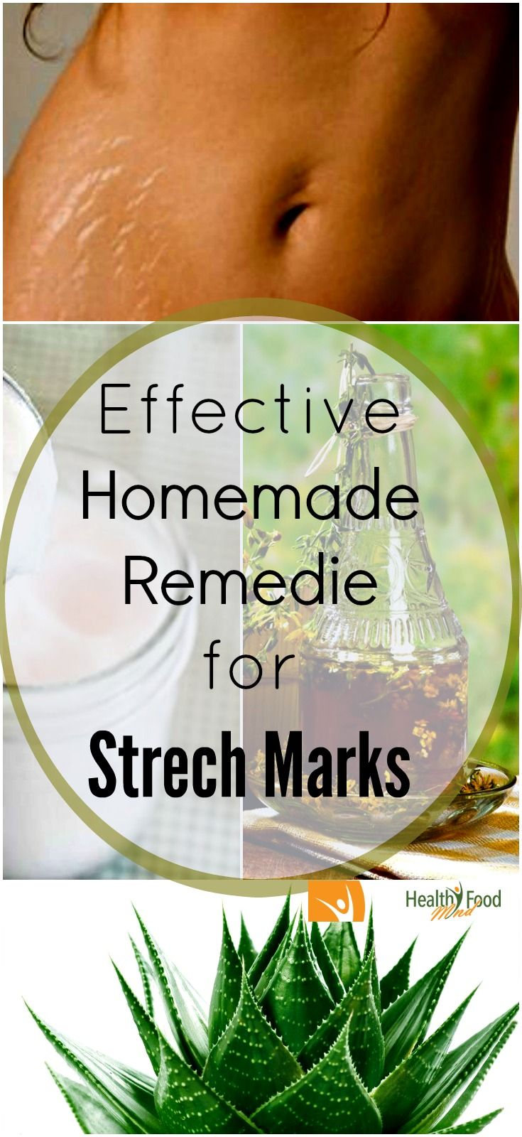 Home Remedies For Strech Marks