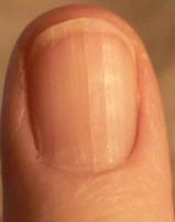 Low Vitamin B12 Shows in Your Fingernails Also, information about how your nails look