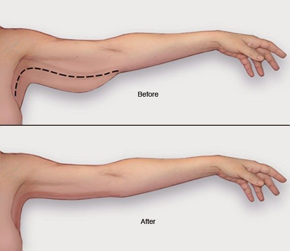 Useful Tips to Lose Arm Fat
