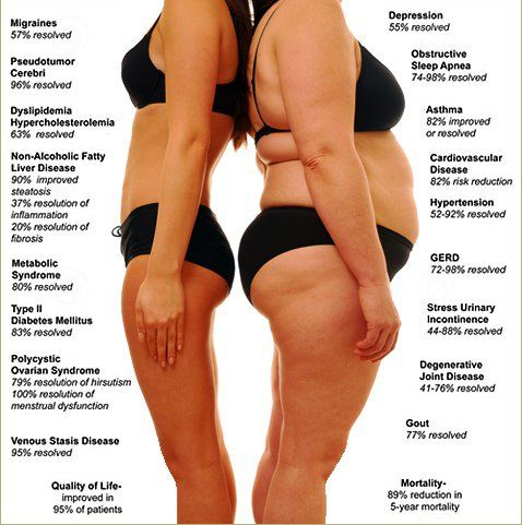 Weight Loss Surgery Comparison