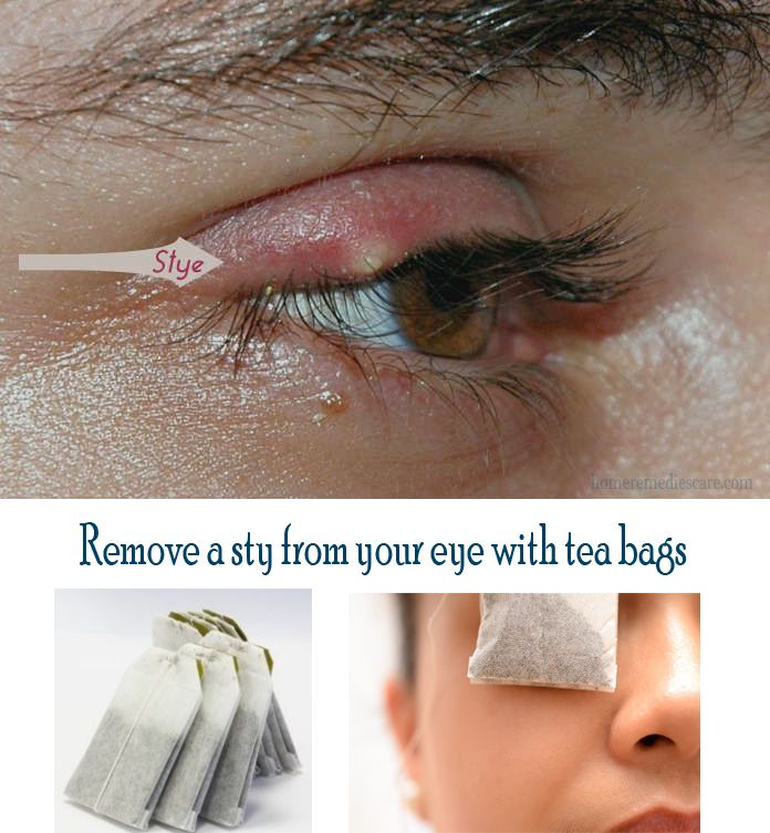 17 Easy Home Remedies to Get Rid