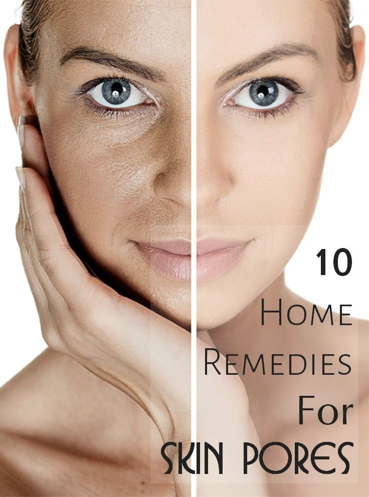 17 Effective Home Remedies For Skin Pores17 Effective Home Remedies For Skin Pores
