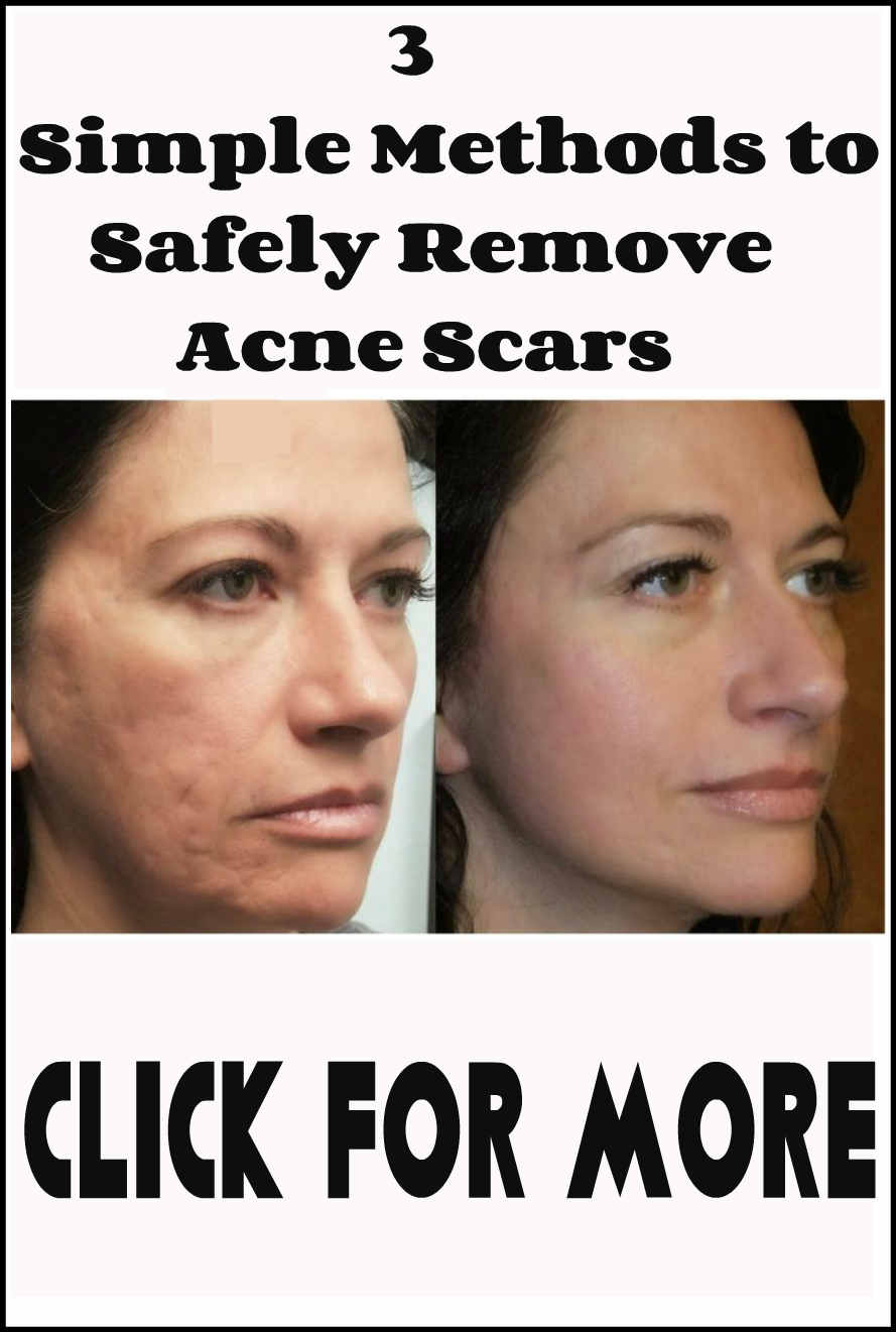 3 Simple Methods to Safely Remove Acne Scars