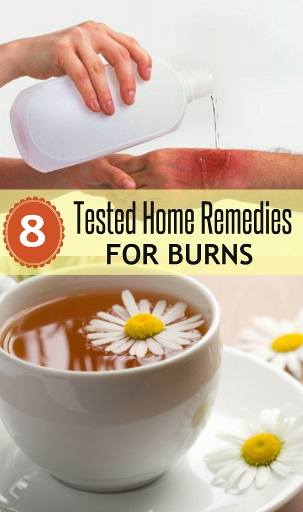 8 Tested Home Remedies for Burns