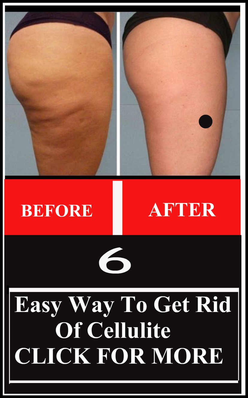 Easy Way To Get Rid Of Cellulite
