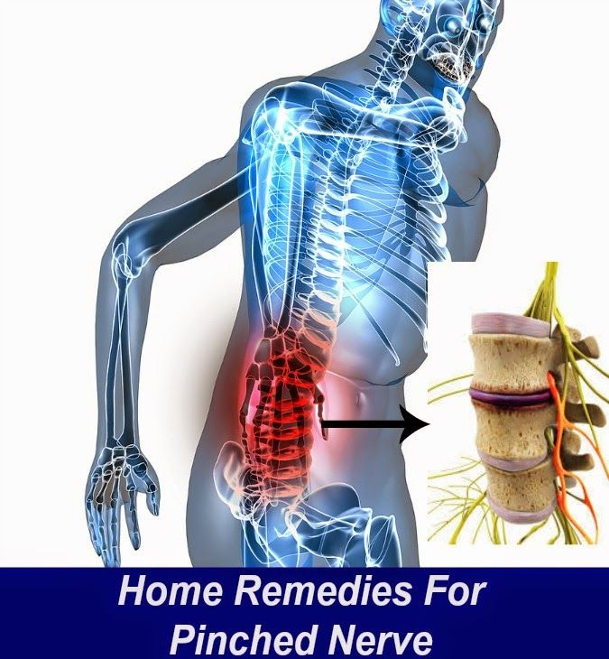 Home Remedies For Pinched Nerve