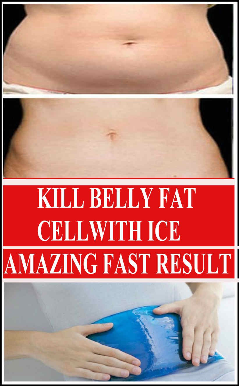 Kill belly fat cells with ice
