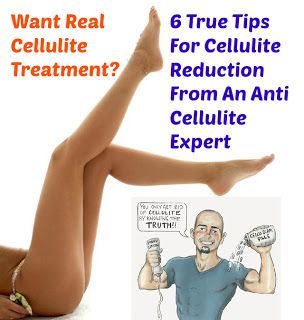 Remove Cellulite And Carve The Body Of Your Dreams