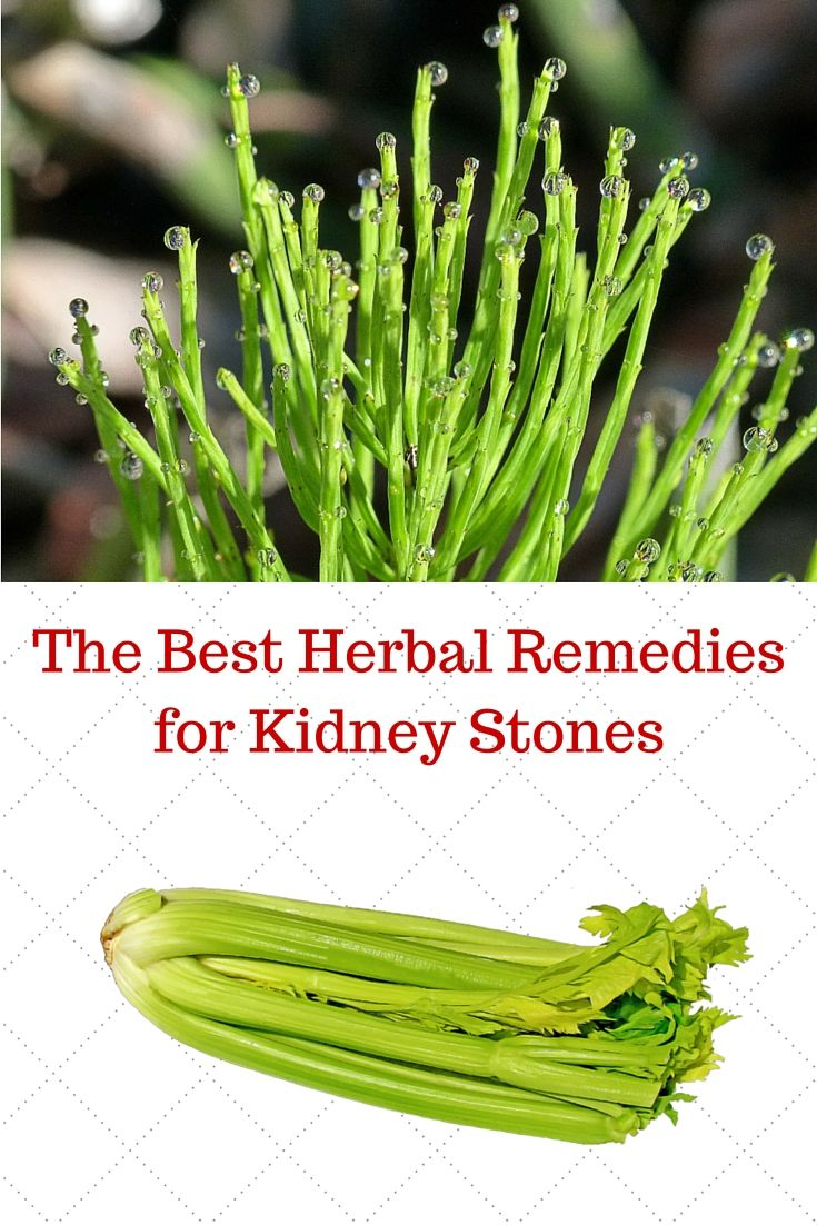 The Best Herbal Remedies for Kidney Stones