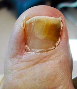 3 powerful home remedies to eliminate toe nail fungus