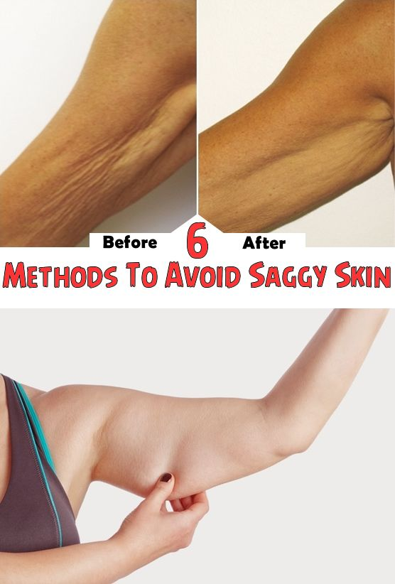 6 Methods To Avoid Saggy Skin