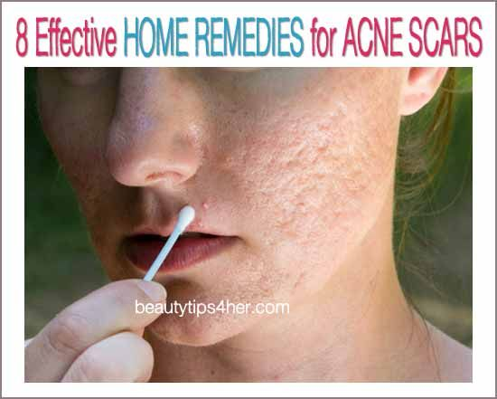 8 Effective Home Remedies for Acne Scars