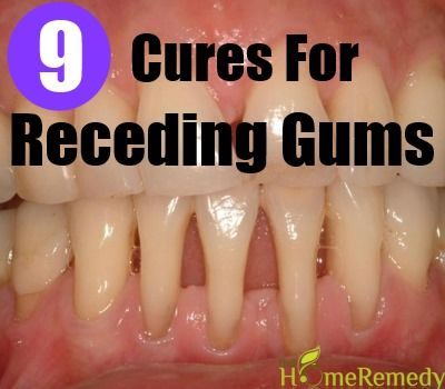 9 Cures For Receding Gums