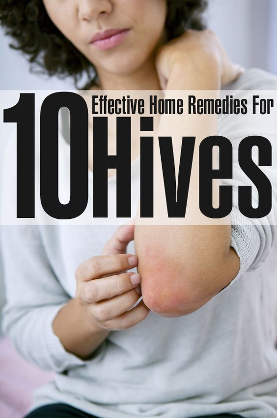 10 Effective Home Remedies For Hives