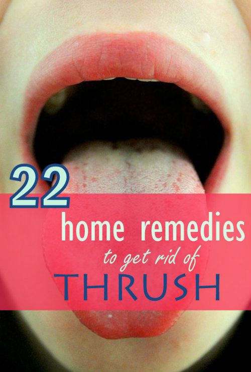 22 Amazing Home Remedies to Get Rid of Thrush