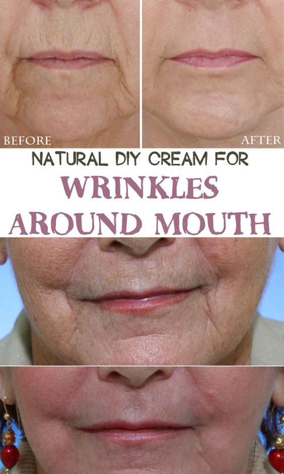 Natural DIY cream for wrinkles around mouth