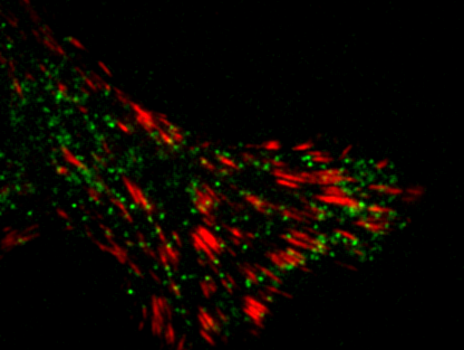 How Cell Signaling Stimulates Cell Migration