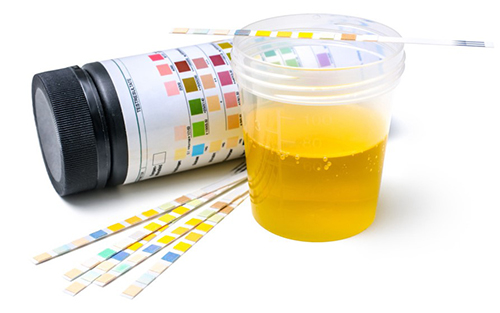 Review Clear Choice Synthetic Urine – Tips to Consider Before Using a Fake Sample
